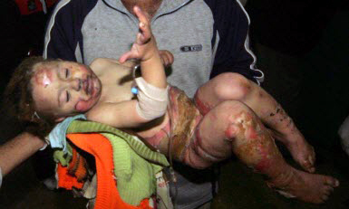 burned Palestinian toddler in Gaza: credit unavailable
